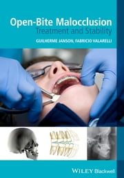 Open-Bite Malocclusion - Treatment and Stability ebook by Guilherme Janson,Fabricio Valarelli