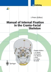 Manual of Internal Fixation in the Cranio-Facial Skeleton - Techniques Recommended by the AO/ASIF Maxillofacial Group ebook by Joachim Prein,L.A. Assael,D.W. Klotch,P.N. Manson,J. Prein,B.A. Rahn,W. Schilli