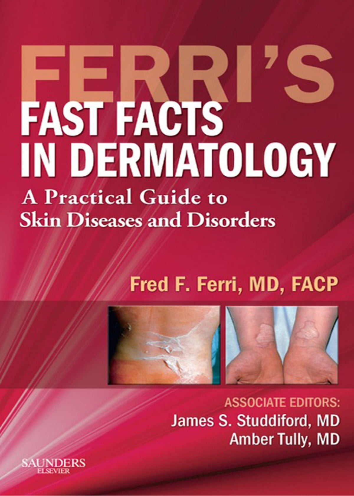 Ferris Fast Facts In Dermatology E Book Ebook By James S
