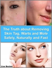 The Truth About Removing Skin Tag, Warts and Mole Safely, Naturally and Fast ebook by Lisa Becker