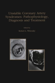 Unstable Coronary Artery Syndromes Pathophysiology, Diagnosis and Treatment ebook by Robert L. Wilensky
