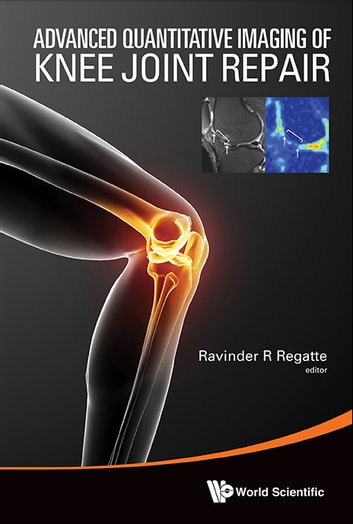 Advanced Quantitative Imaging of Knee Joint Repair ebook by Ravinder R Regatte