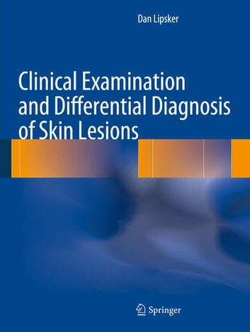 Clinical Examination and Differential Diagnosis of Skin Lesions ebook by Dan Lipsker