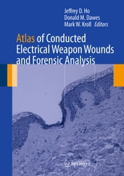 Atlas of Conducted Electrical Weapon Wounds and Forensic Analysis ebook by Jeffrey D. Ho,Donald M. Dawes,Mark W. Kroll